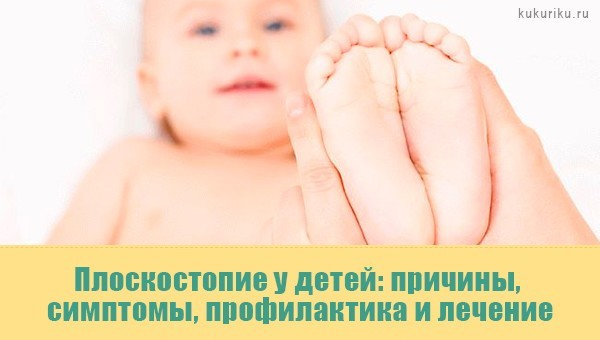 Плоскостопие у детей: причины, симптомы, профилактика и лечение