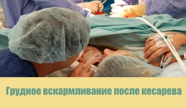 Новорожднный после кесарева уход и кормление