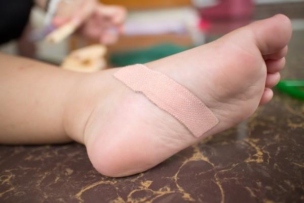 как удалить занозу со стопы