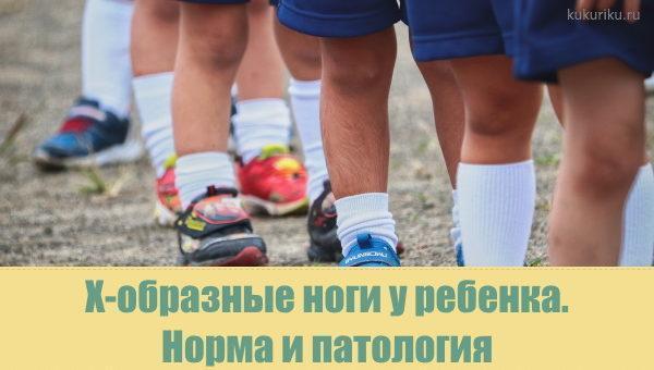 Норма и патология при Х-образной форме ног у детей