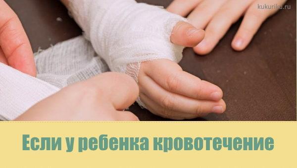Если у ребенка кровотечение