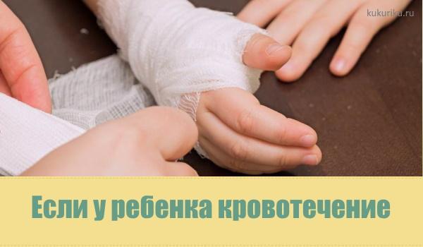 Кровотечение у ребенка